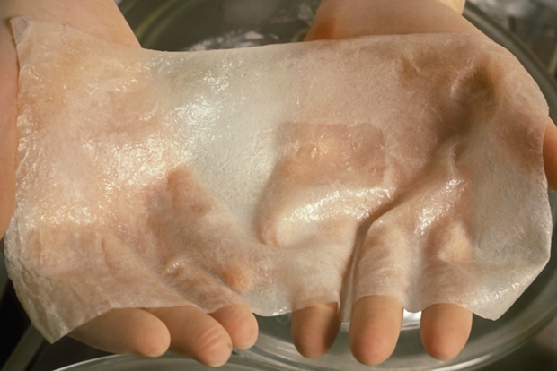 Researcher holds new skin made from shark cartilage and bovine collagen to be used as a matrix for regrowth of new dermis on burned skin of fire victims and other skin trauma. --- Image by © Dan McCoy - Rainbow/Science Faction/Corbis